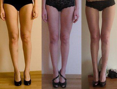 как похудеть в коленях видео