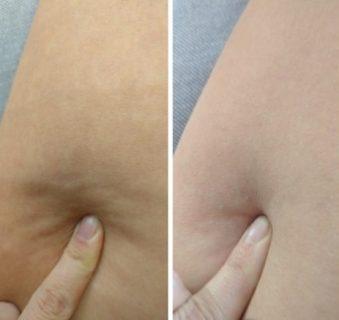Результат после сухого антицеллюлитного массажа