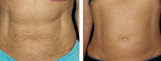 Восстановление после родов: до и после