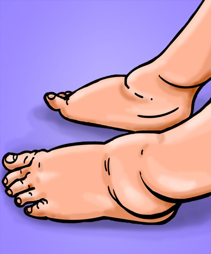 Венозная недостаточность и болезни сердца