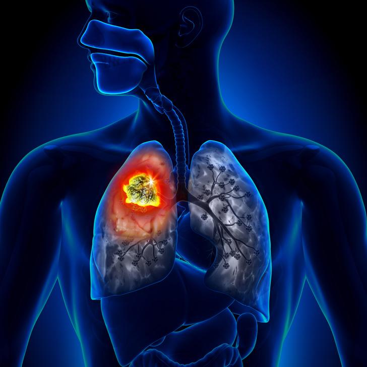 Рак и другие заболевания