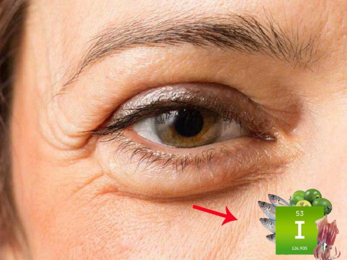 Отеки глаз и микроэлемент йод