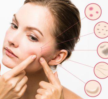 Проблемная кожа у женщин