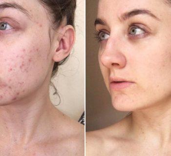 Проблемная кожа до и после чистки