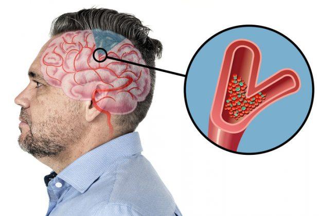 Закупорка сосудов мозга