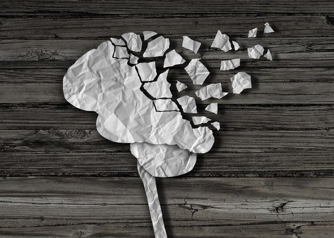 Проблемы работы мозга