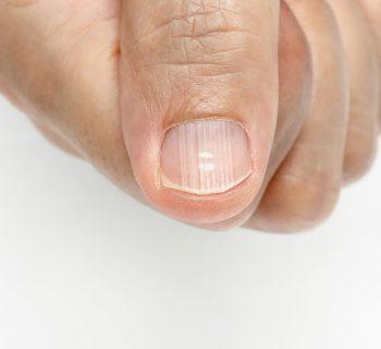 Белые пятна и полоски на ногтях