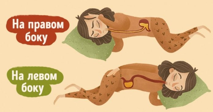 ГЭРБ при сне на правом боку
